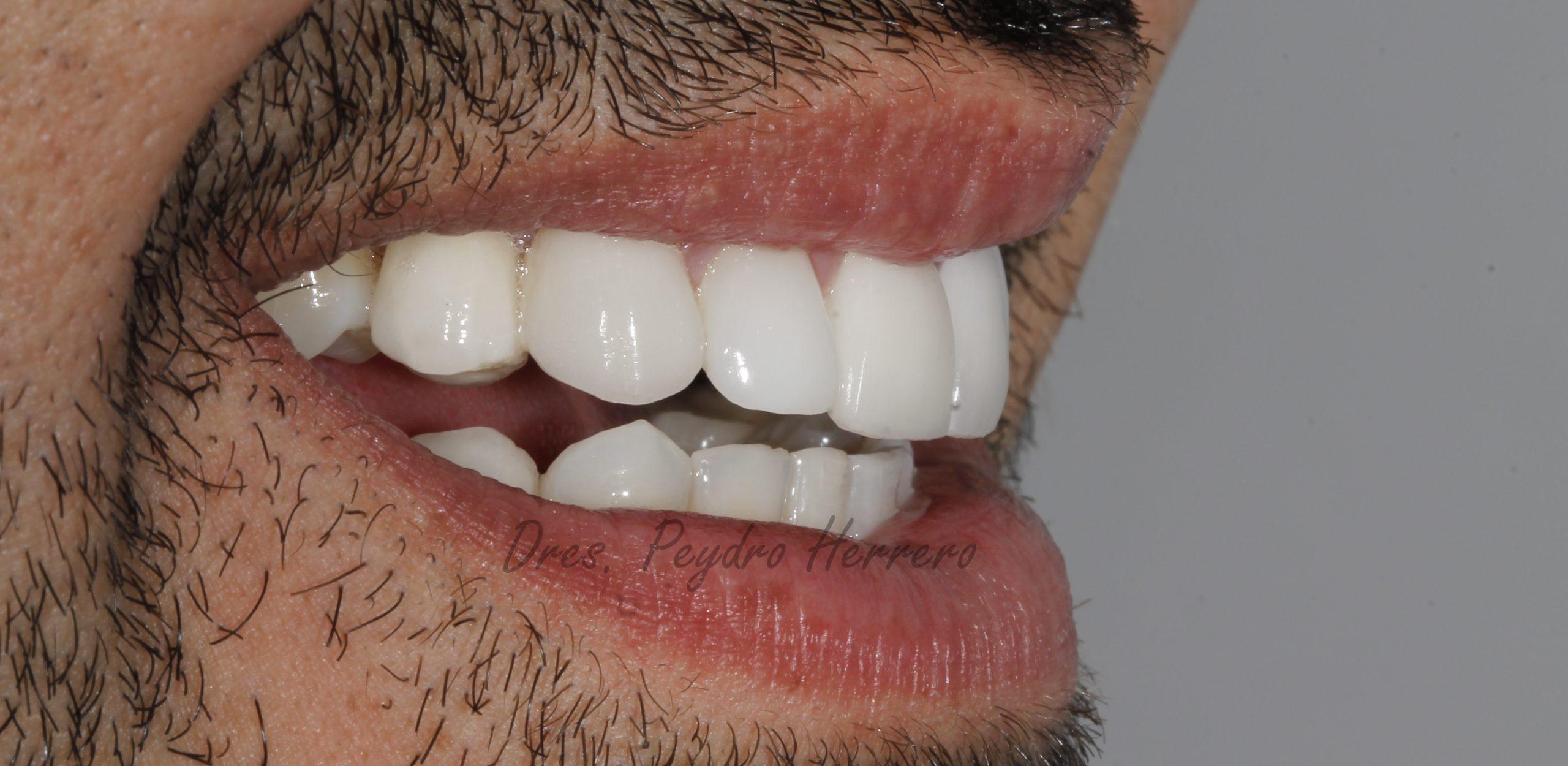 odontologia multidisciplinar en Clínica Peydro