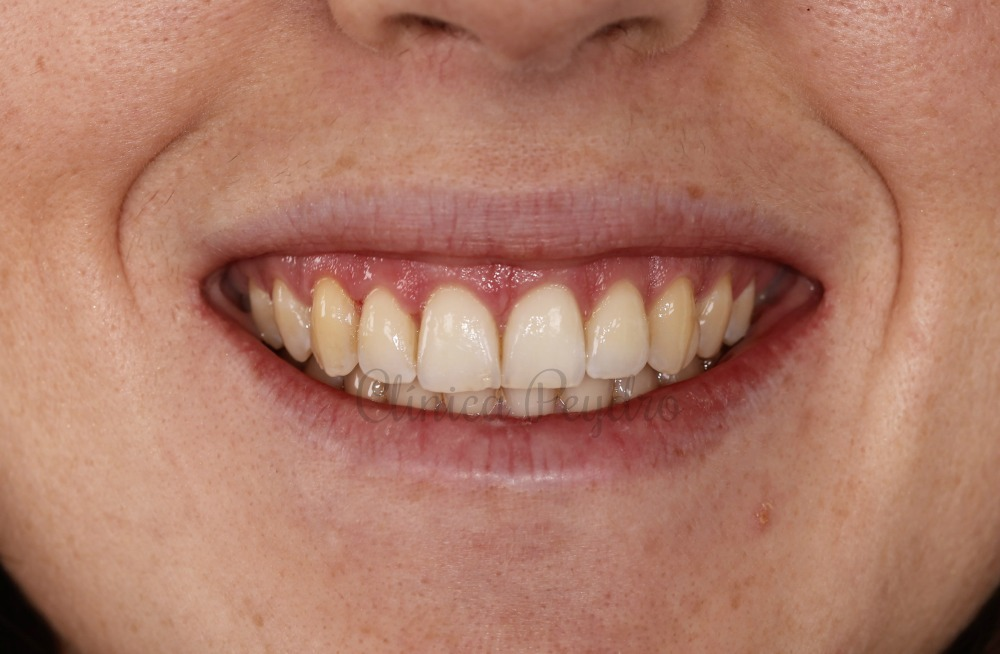 sonrisa gingival valencia