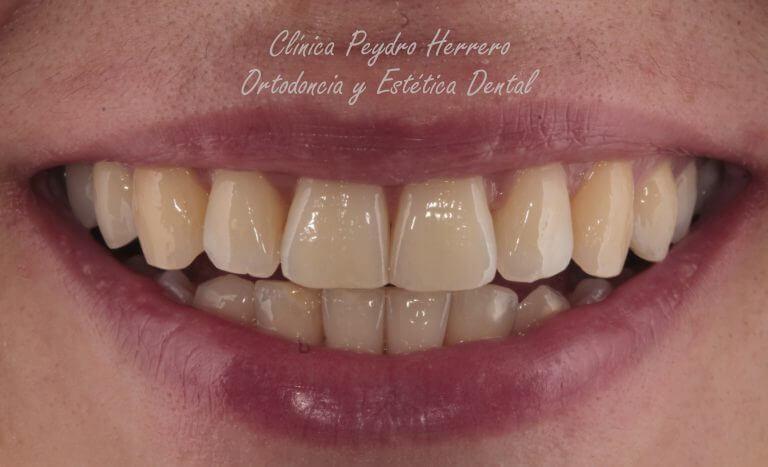 apiñamiento dental y dientes oscuros