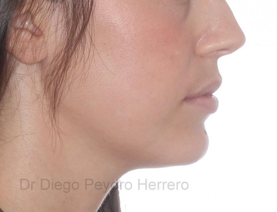 puede la ortodoncia cambiar la forma de la cara