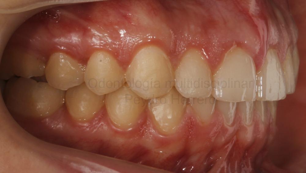 sonrisa gingival con ortodoncia invisible