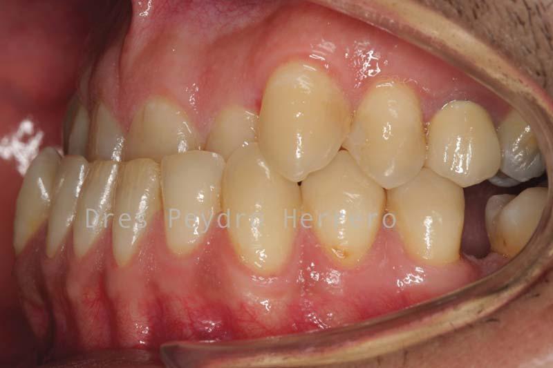 clinica ortodoncia valencia