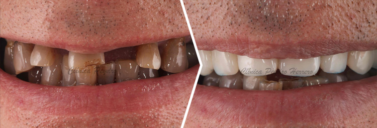 clinica de implantes dentales en valencia