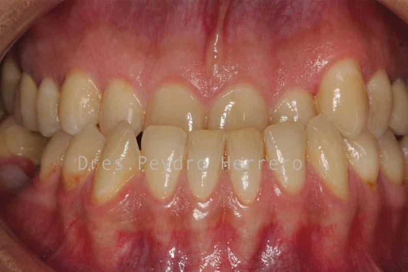 clinica de ortodoncia en valencia