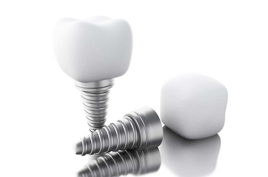 clinica de implantes en valencia