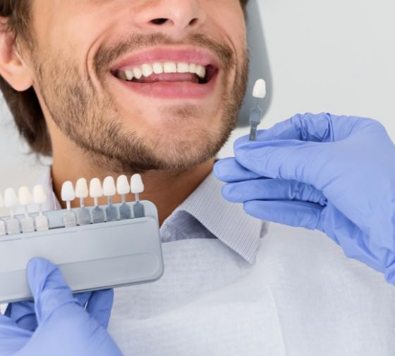 Carillas Dentales Valencia - Clinica Dental Valencia - Dentista Valencia Clinica Dental PeyDro