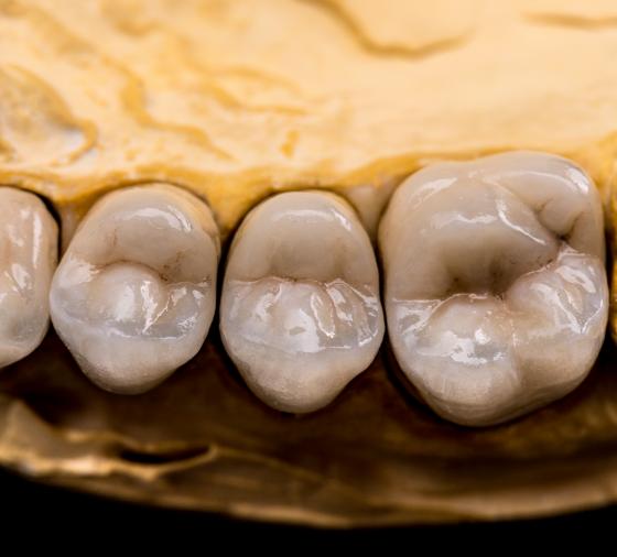 Dentista Valencia Clinica Peydro denture-made-of-ceramics-PGH45UY@2x
