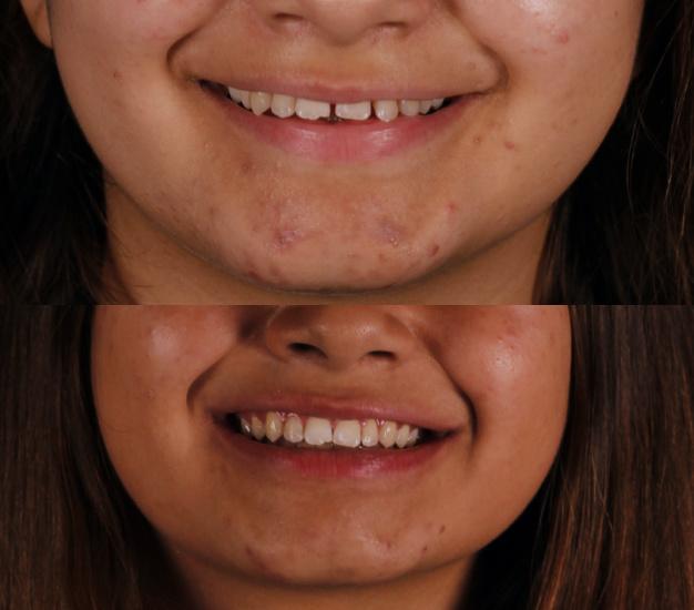 * Fotografía frontal de la pacientes antes y después del tratamiento