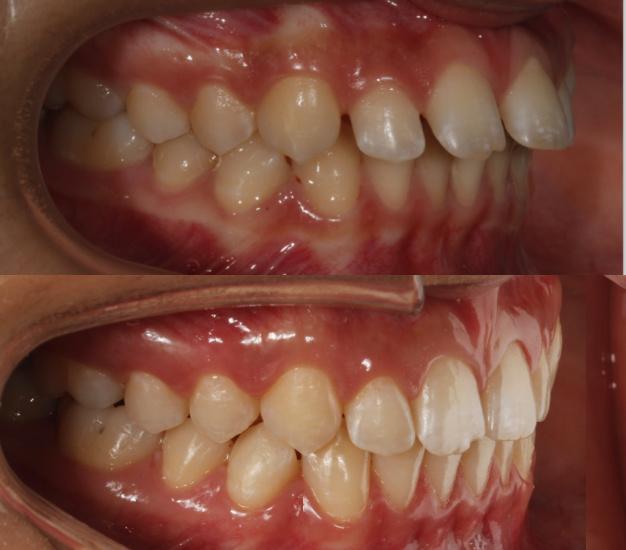 * Fotografía del lateral izquierdo de la pacientes antes y después del tratamiento