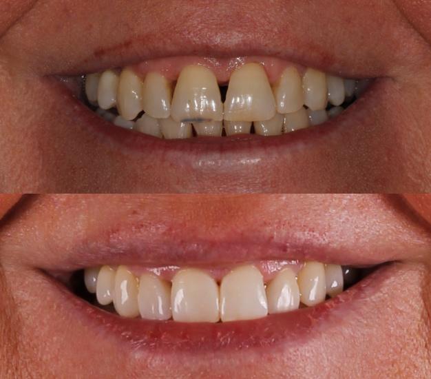 * Fotografía de la boca de la paciente antes y después del tratamiento