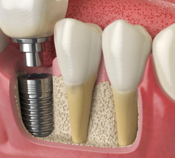 Reconducción del Nervio Dentario valencia