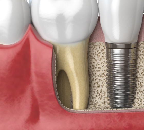 anatomy-of-healthy-teeth-and-tooth-dental-implant-PAF6ZMW@2x
