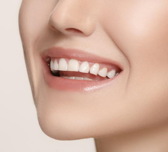 clinica dental valencia teeth whitening@2x