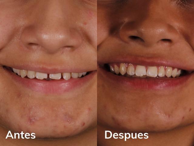 ortodoncia invisible en niños adolescentes comparativa