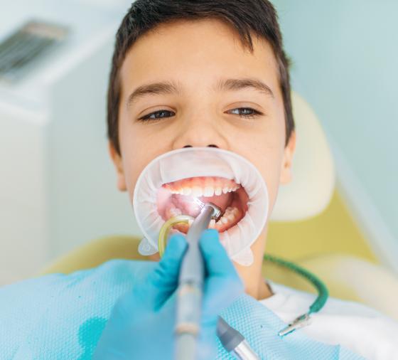 ortodoncia valencia dentista valencia caries-removal-procedure-pediatric-dentistry-8XLTNQK@2x