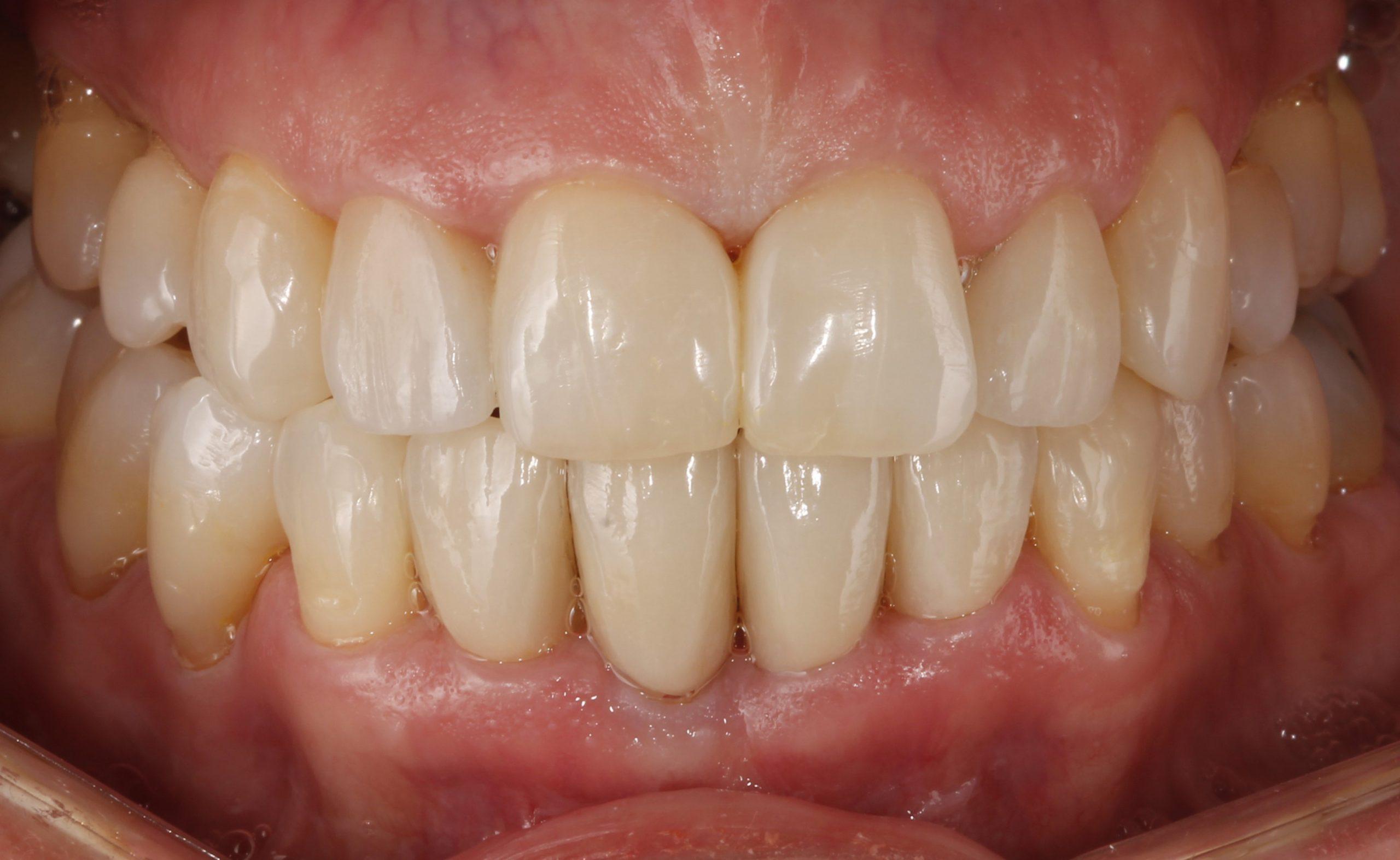 Sonrisa de la paciente tras invisalign y tratamientos de estética dental
