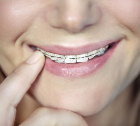 valencia dentista teenager-with-braces-KZEGTR9@2x