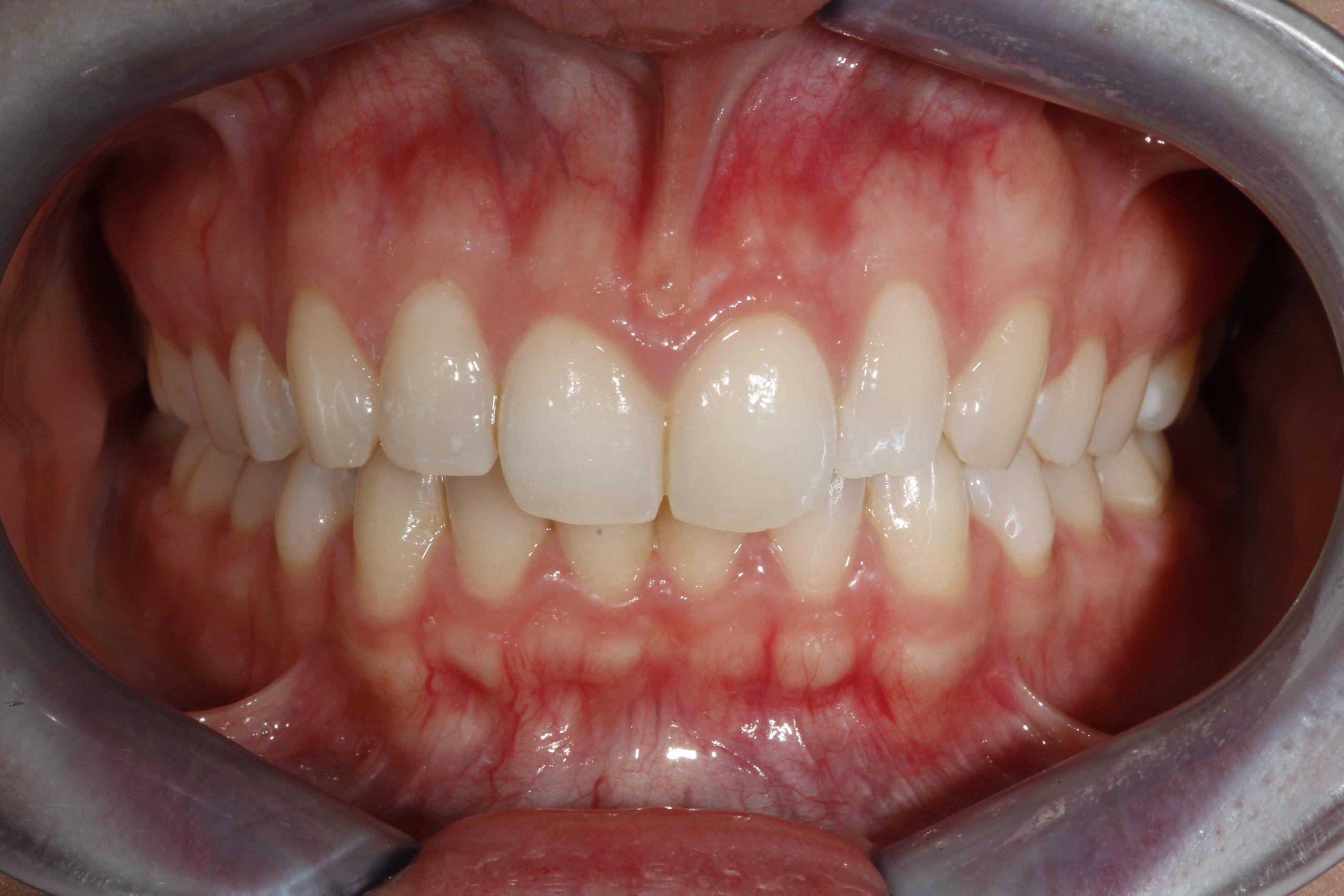 Análisis de la sonrisa gingival