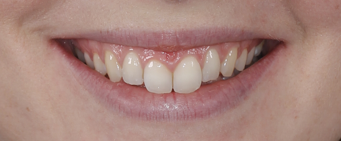 Correccion de sonrisa gingival con ortodoncia invisible