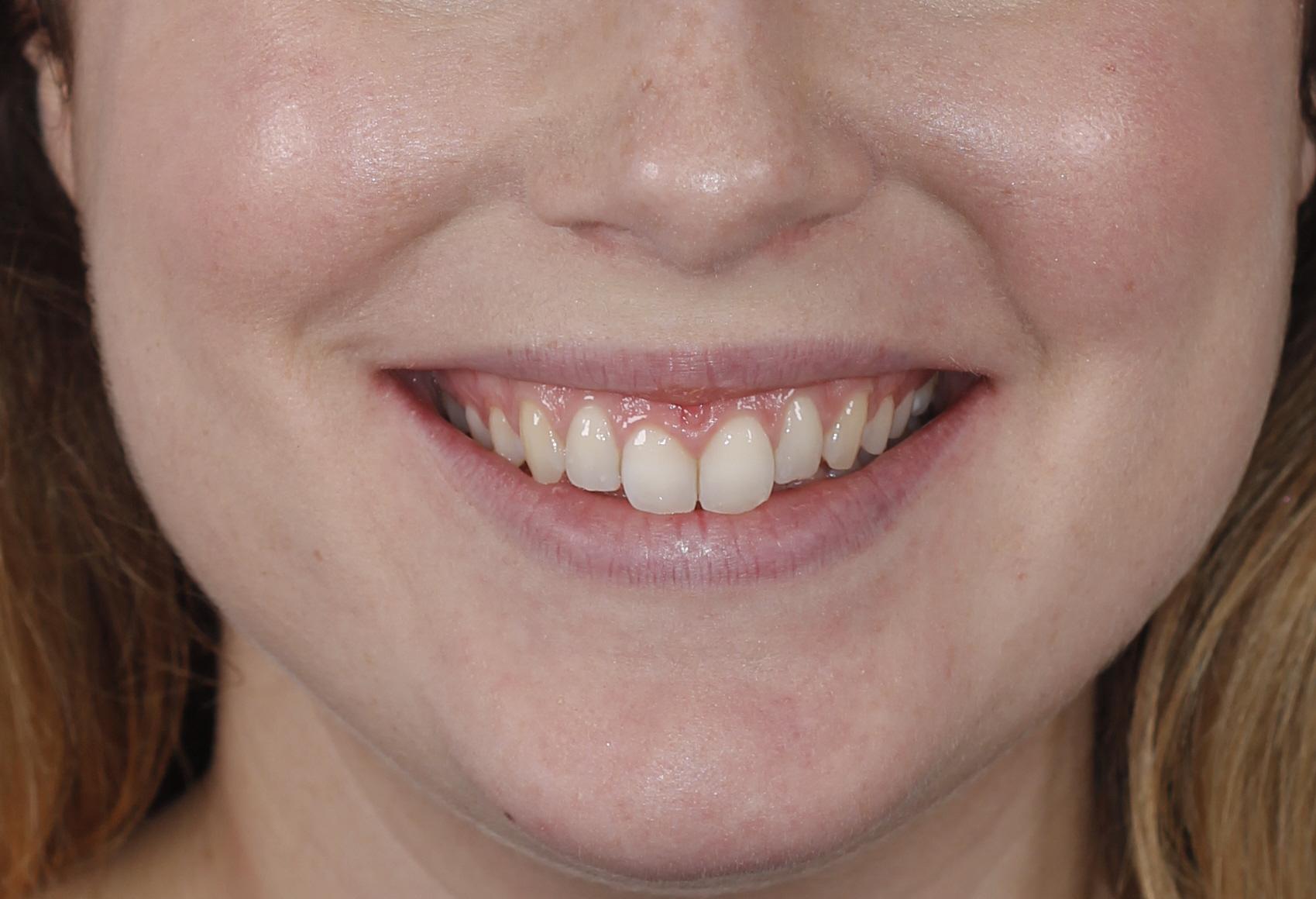 Sonrisa gingival de la paciente