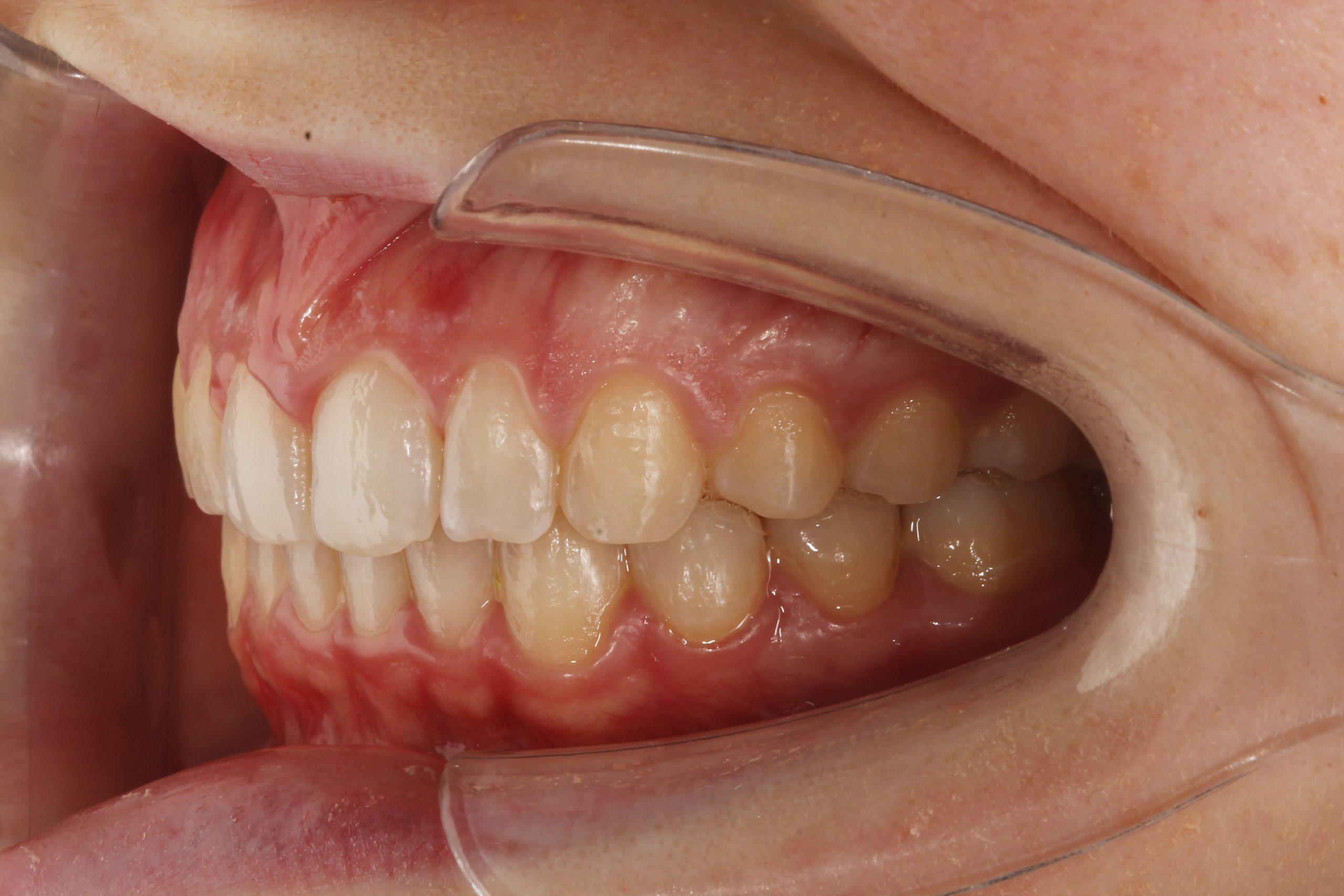 Mordida tras corregir sonrisa gingival con ortodoncia invisible