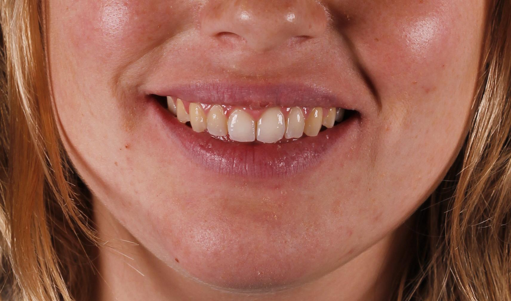 Corregimos sonrisa gingival con ortodoncia invisible