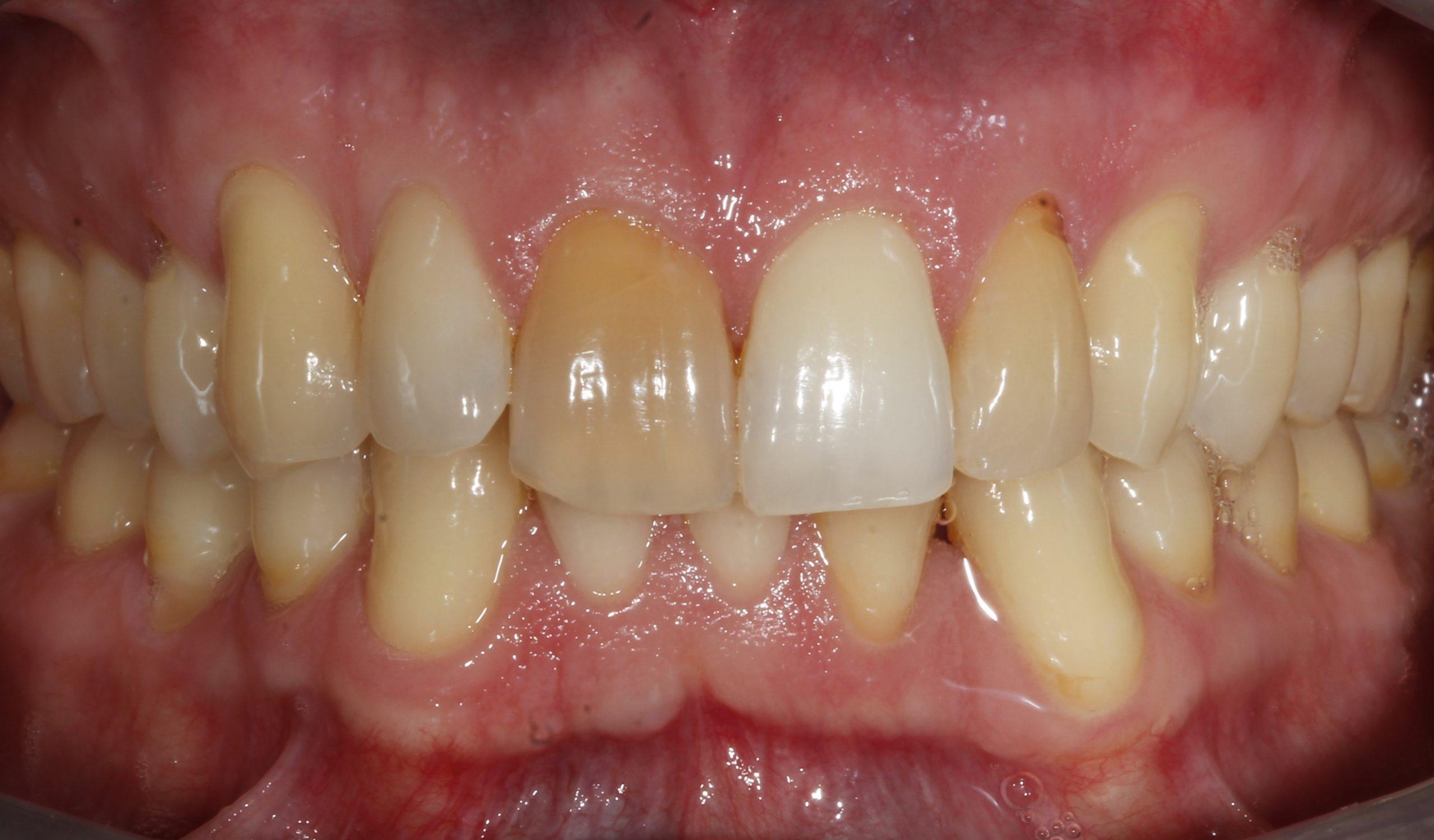 Paciente antes del tratamiento de ortodoncia y blanqueamiento