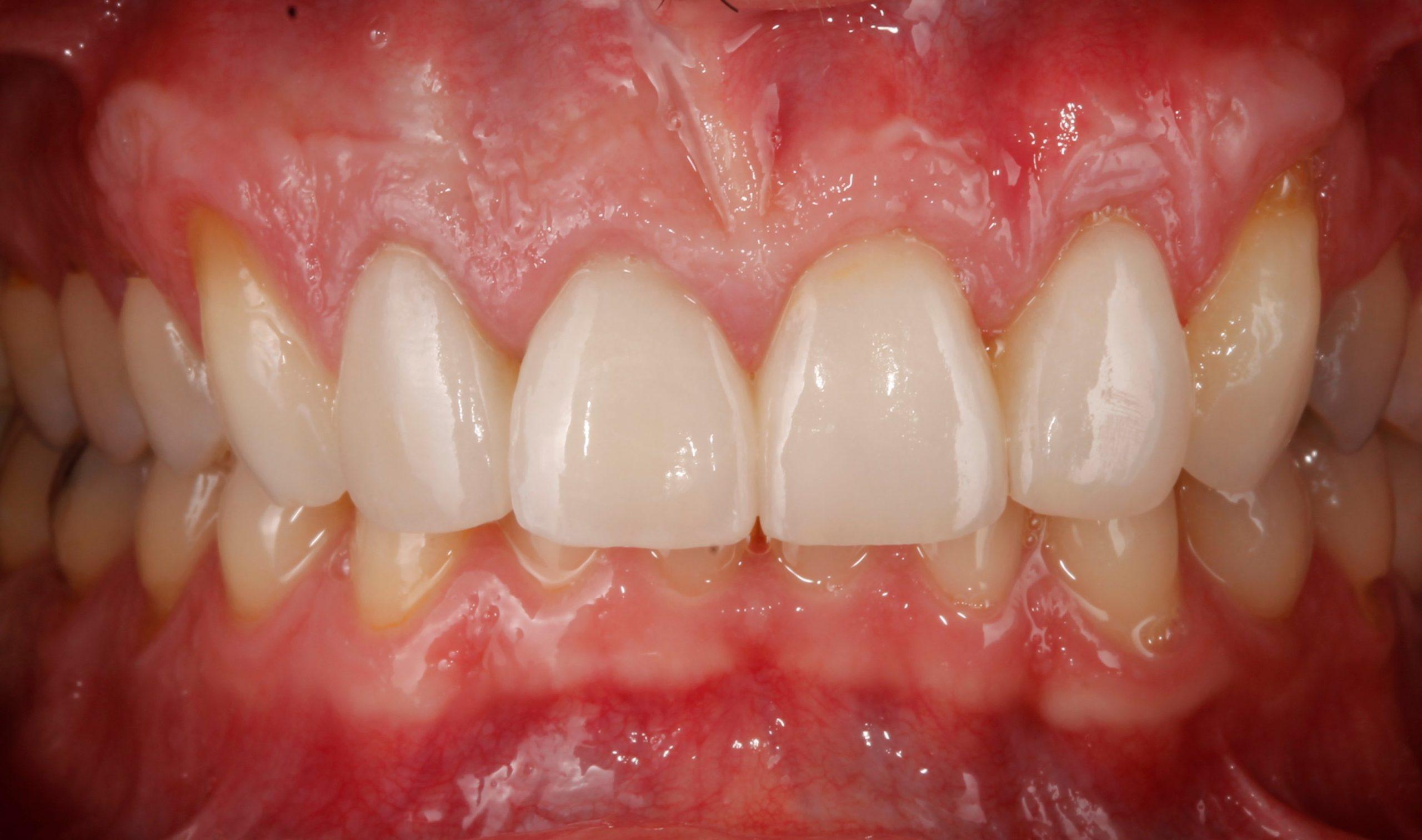Fotografías tras ortodoncia, blanqueamiento y carillas
