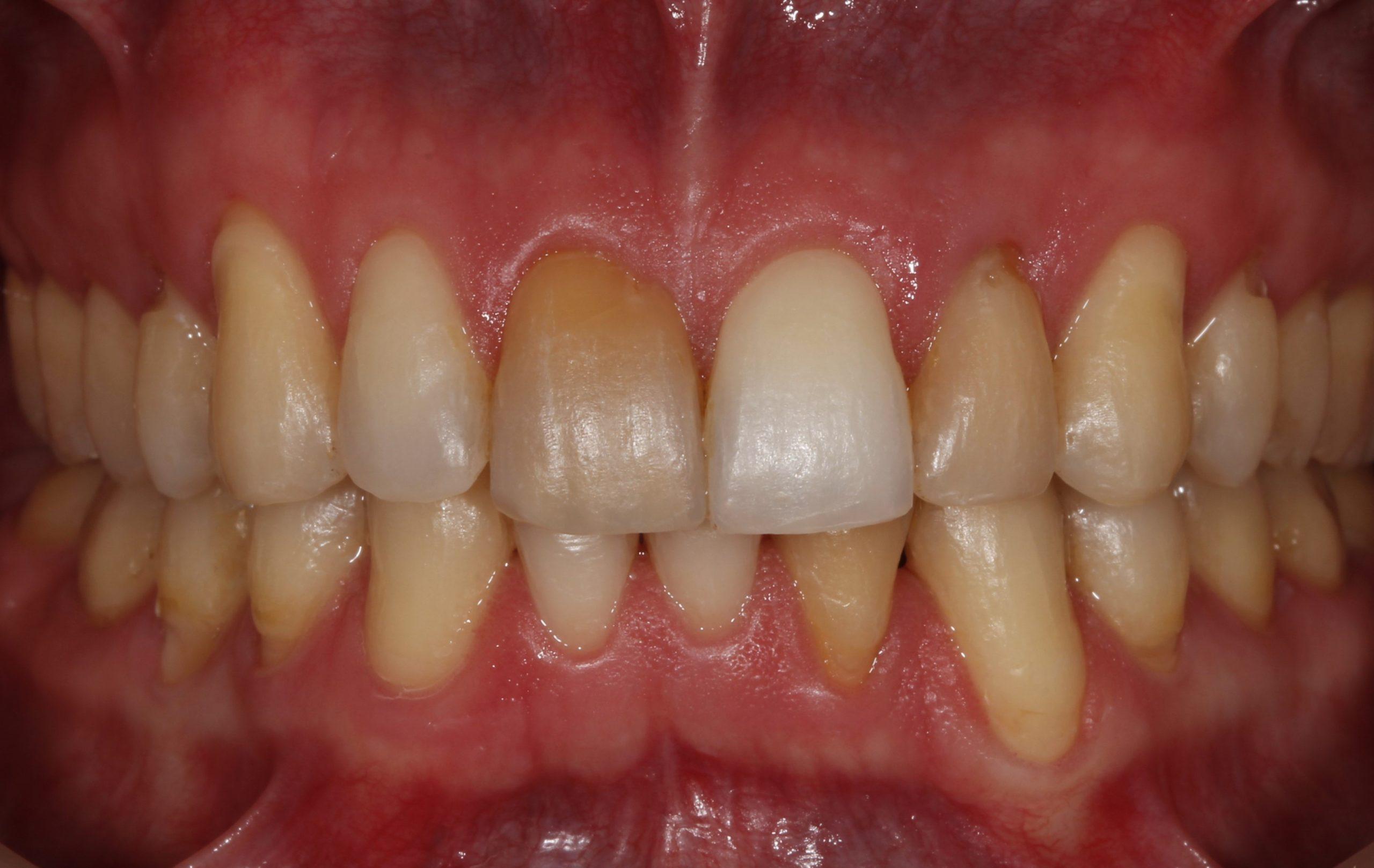 Sonrisa del paciente tras la ortodoncia y antes del blanqueamiento