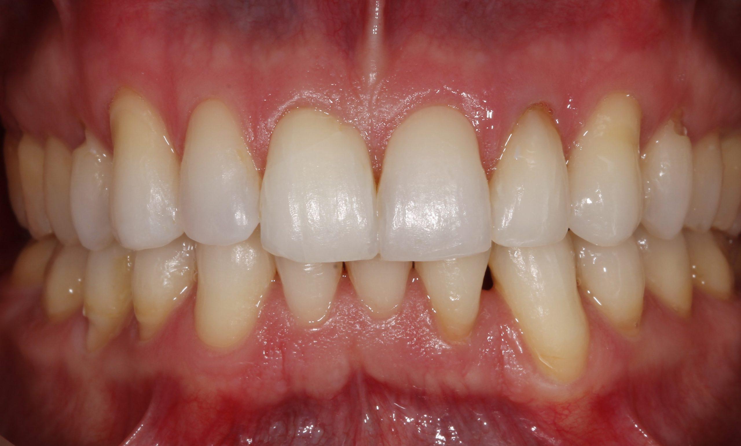 Sonrisa del paciente tras el tratamiento de ortodoncia y blnaqueamiento