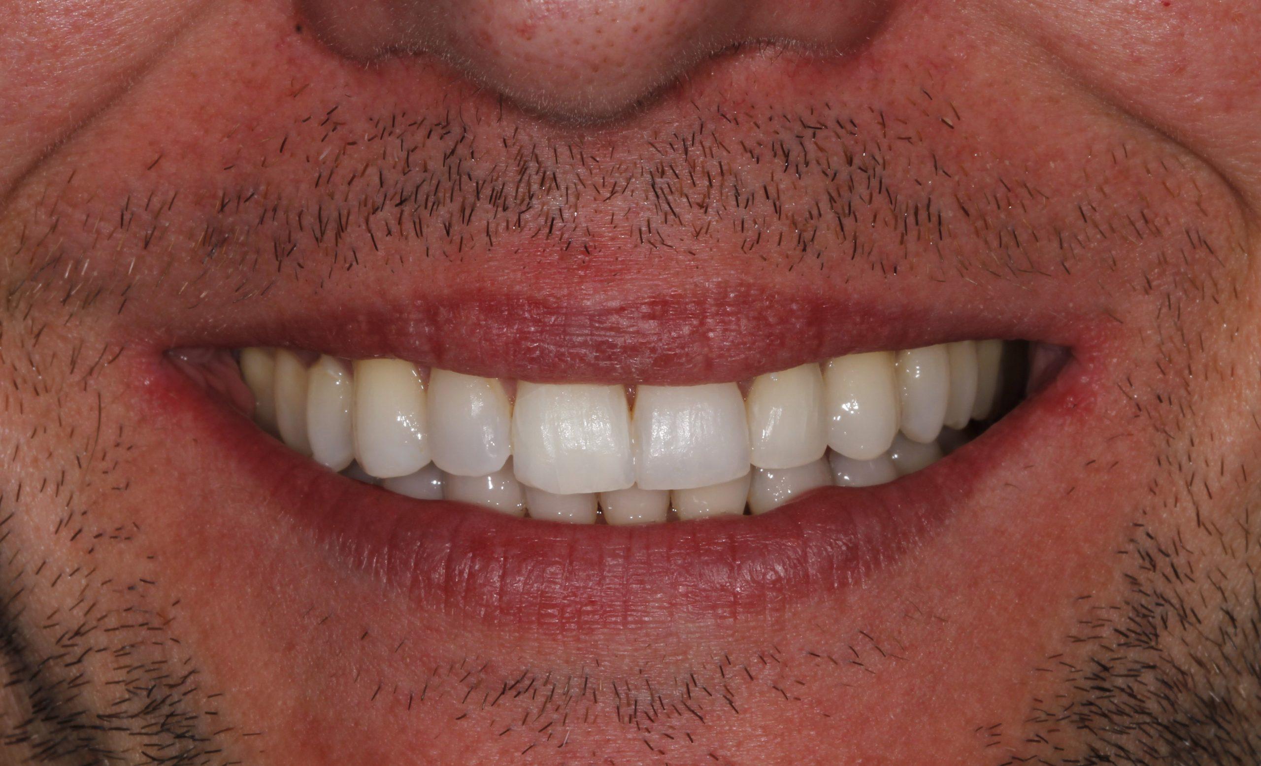 Sonrisa final del paciente