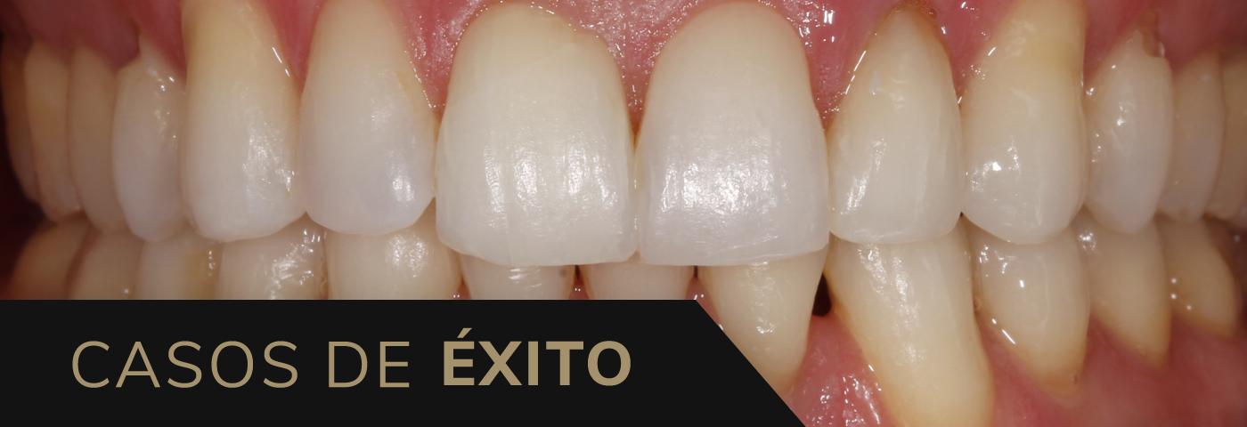 Caso de éxito, ortodoncia y blanqueamiento