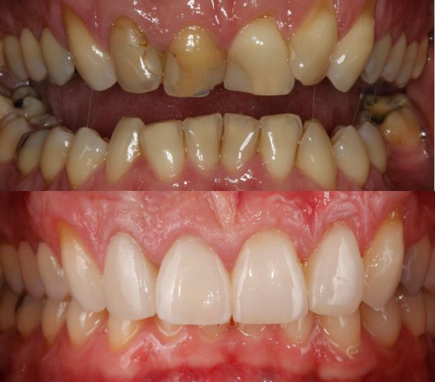 * Fotografía del paciente antes y después del tratamiento