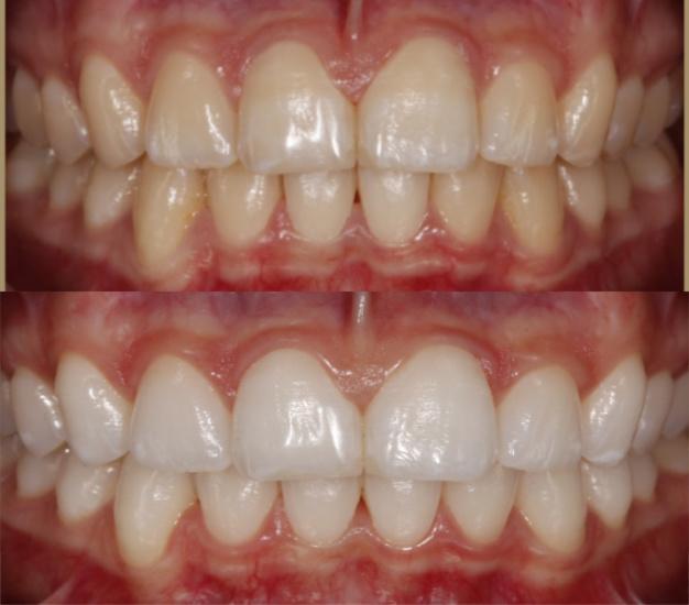 * Fotografía del antes y después del blanqueamiento dental