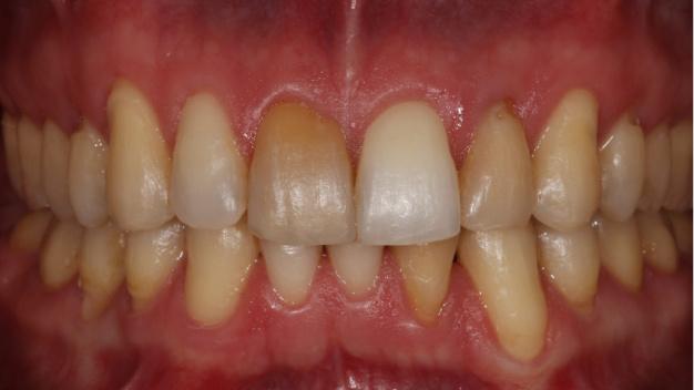 * Fotografía del paciente tras finalizar el tratamiento de ortodoncia