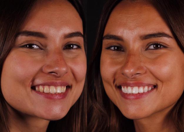Blanqueamiento dental en paciente joven