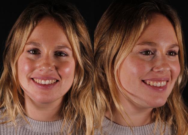 * Fotografía frontal y lateral de la paciente tras el tratamiento