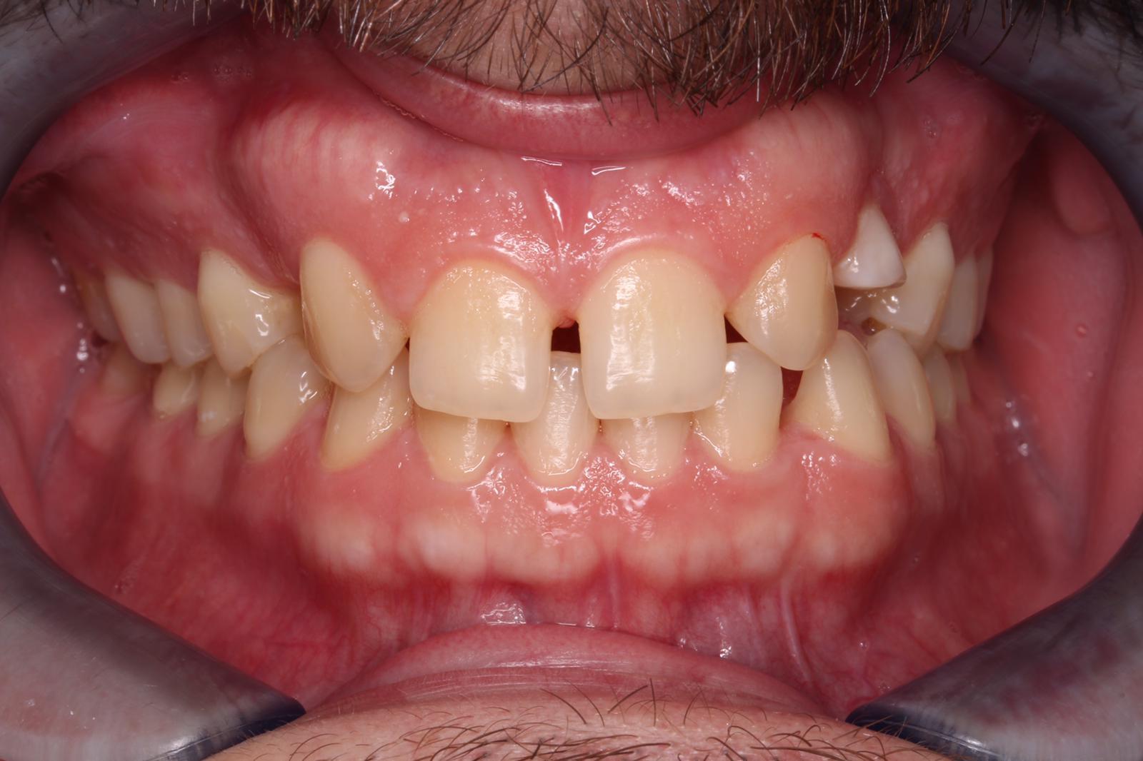 Dentadura del paciente antes del tratamiento