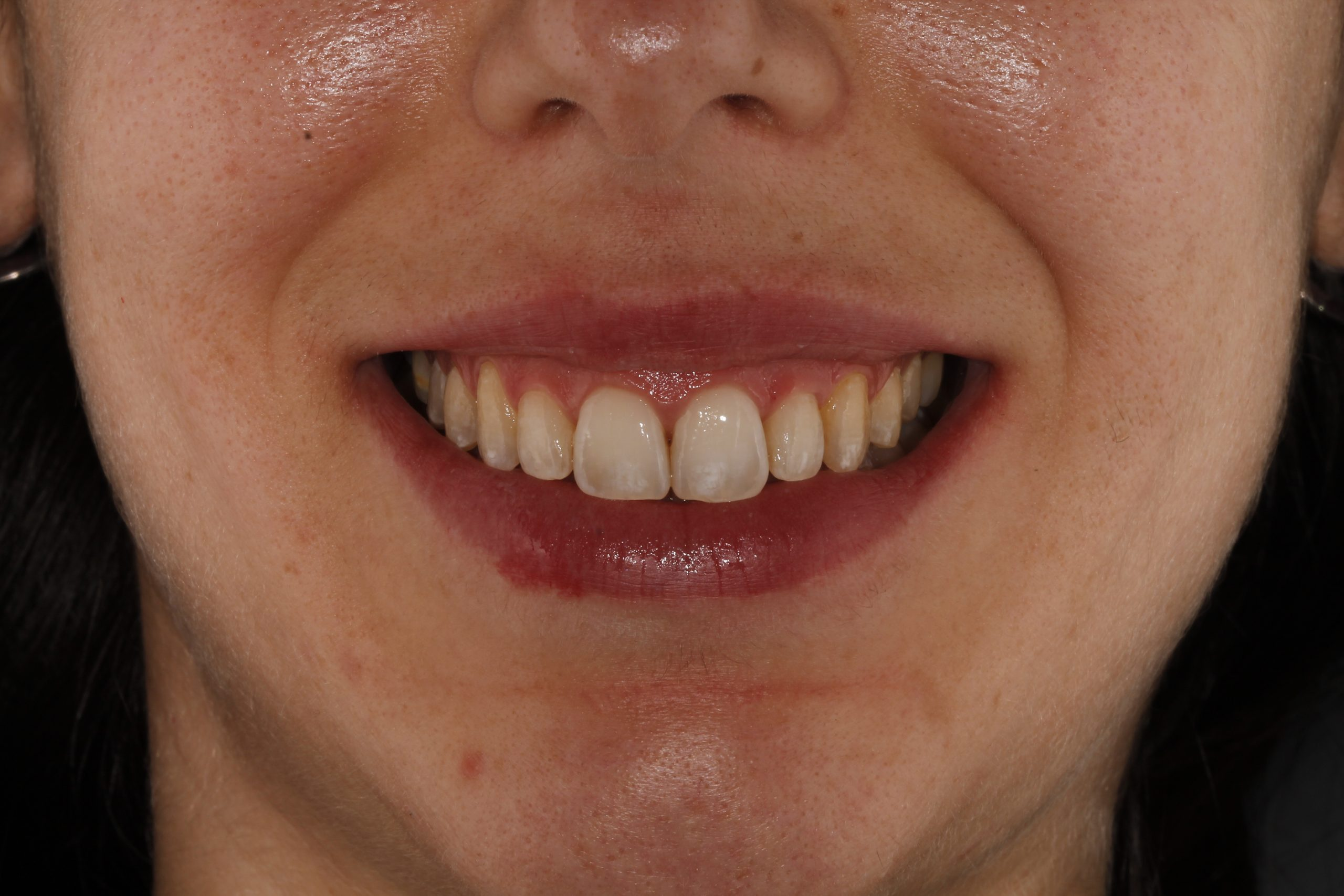 Sonrisa gingival corregida con ortodoncia invisible