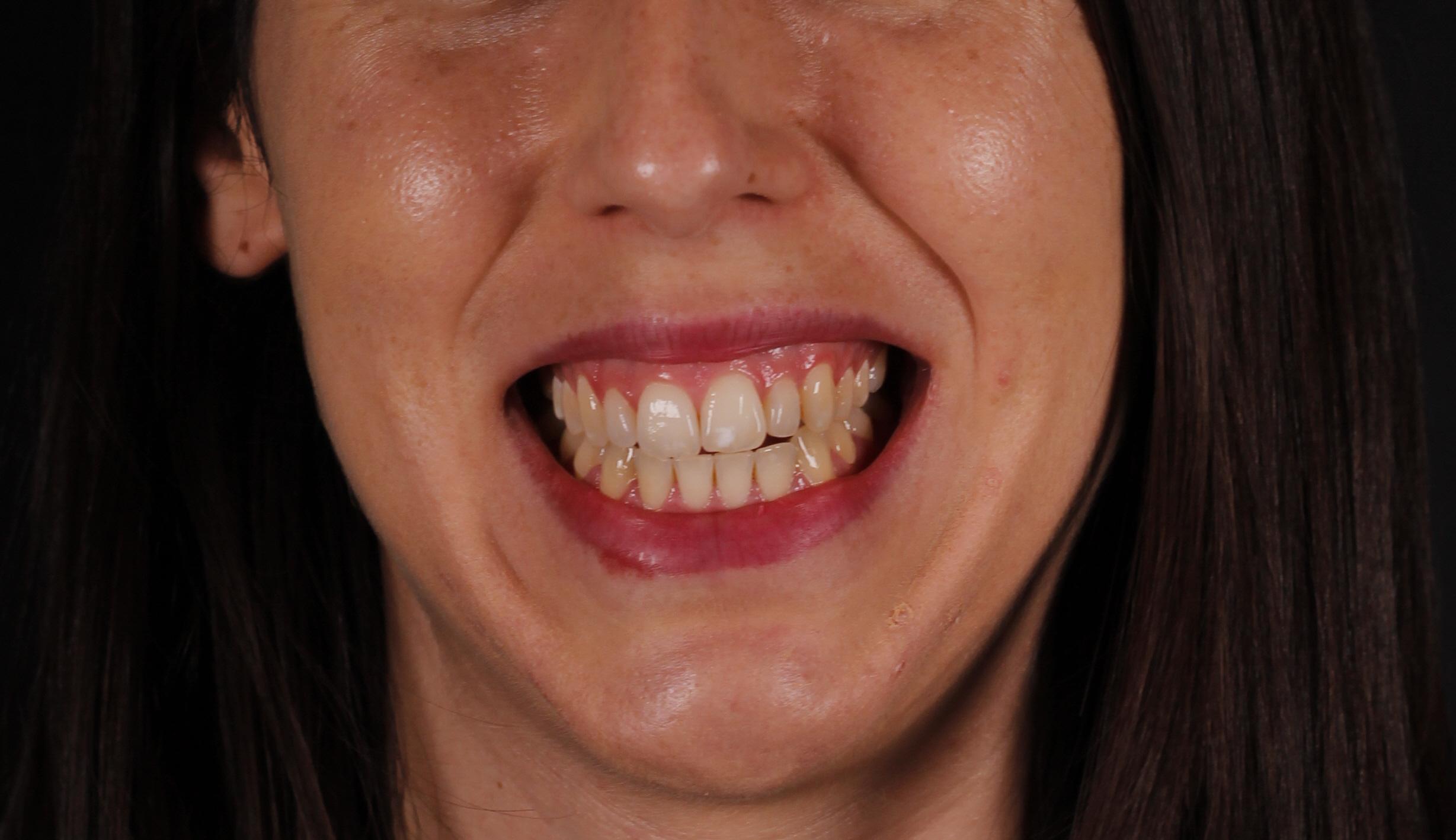 Sonrisa gingival antes de ser corregida con ortodoncia invisible