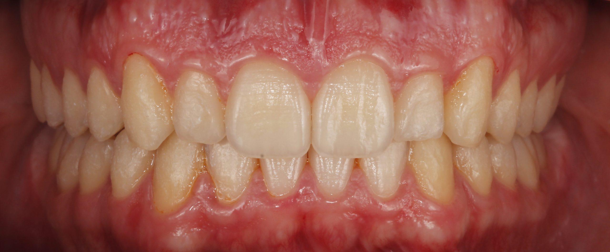 Solucionamos apiñamientos con ortodoncia invisible