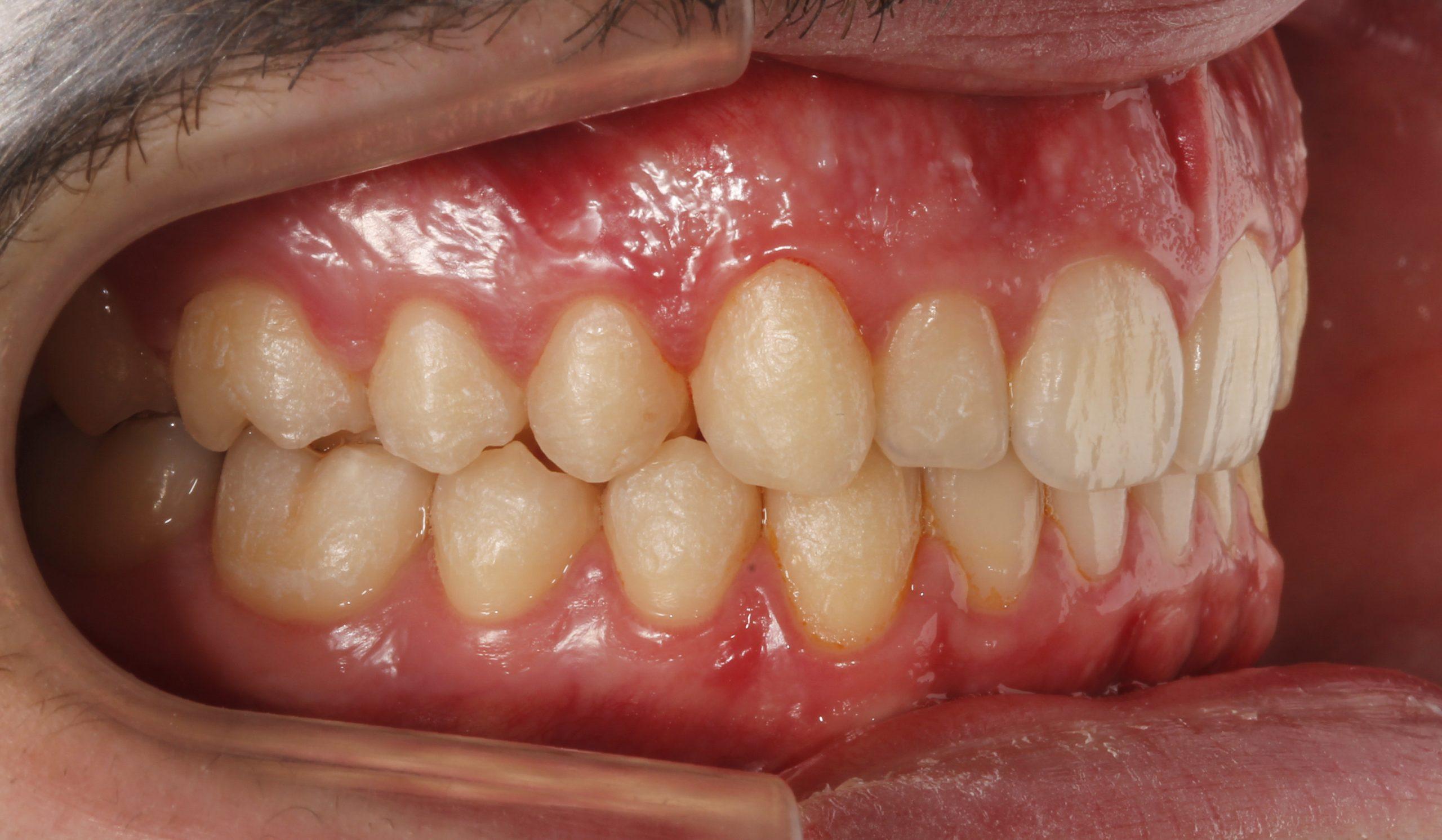 Clinica Peydro, solucionamos apiñamientos con ortodoncia invisible