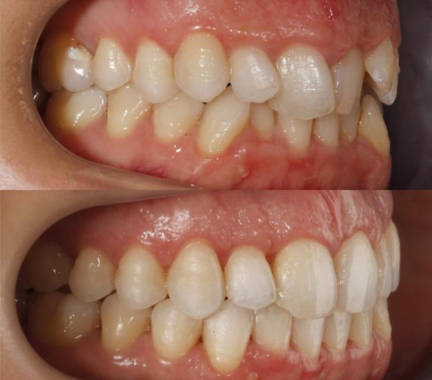 Fotografía lateral de la paciente antes y después del tratamiento