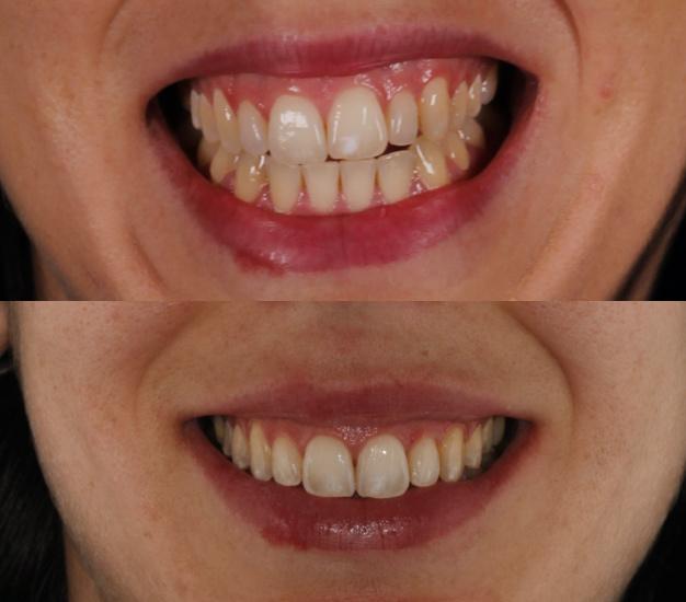 * Fotografía de la paciente antes y después del tratamiento