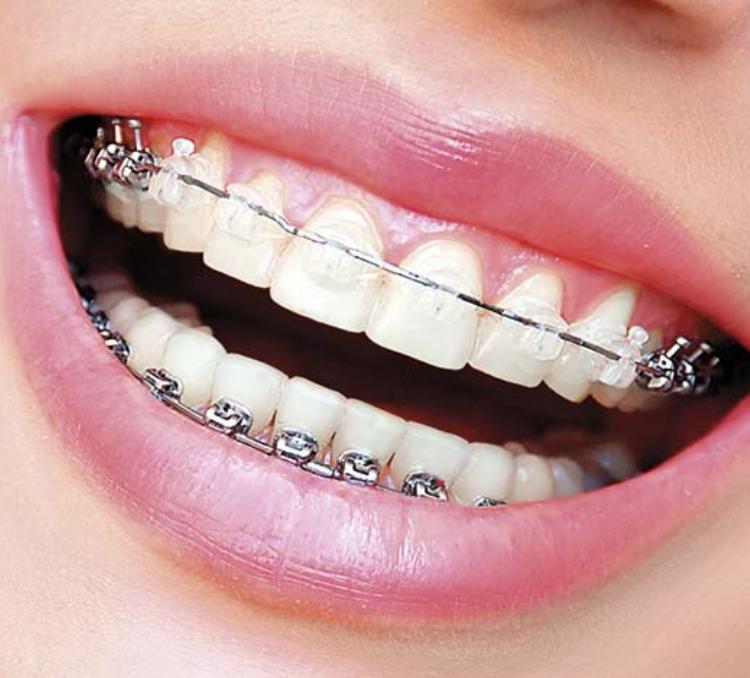 Ortodoncia Damon System Valencia - implantes dentales valencia - dentista valencia