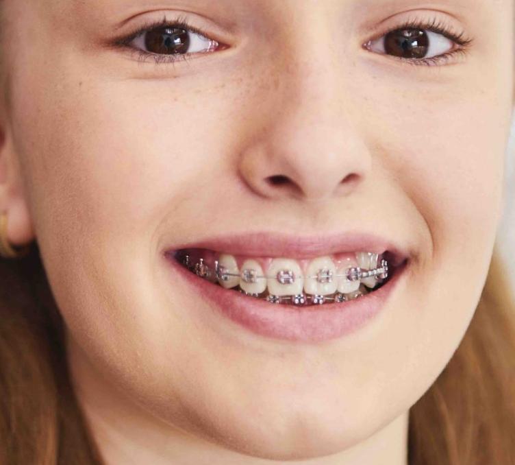 ortodoncia infantil valenica - - implantes dentales valencia - dentista valencia