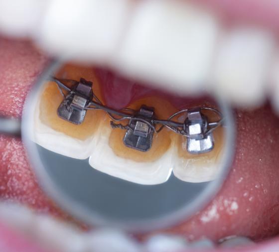 ortodoncia lingual@2x