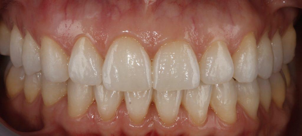 Solucionamos sonrisa gingival con ortodoncia invisible