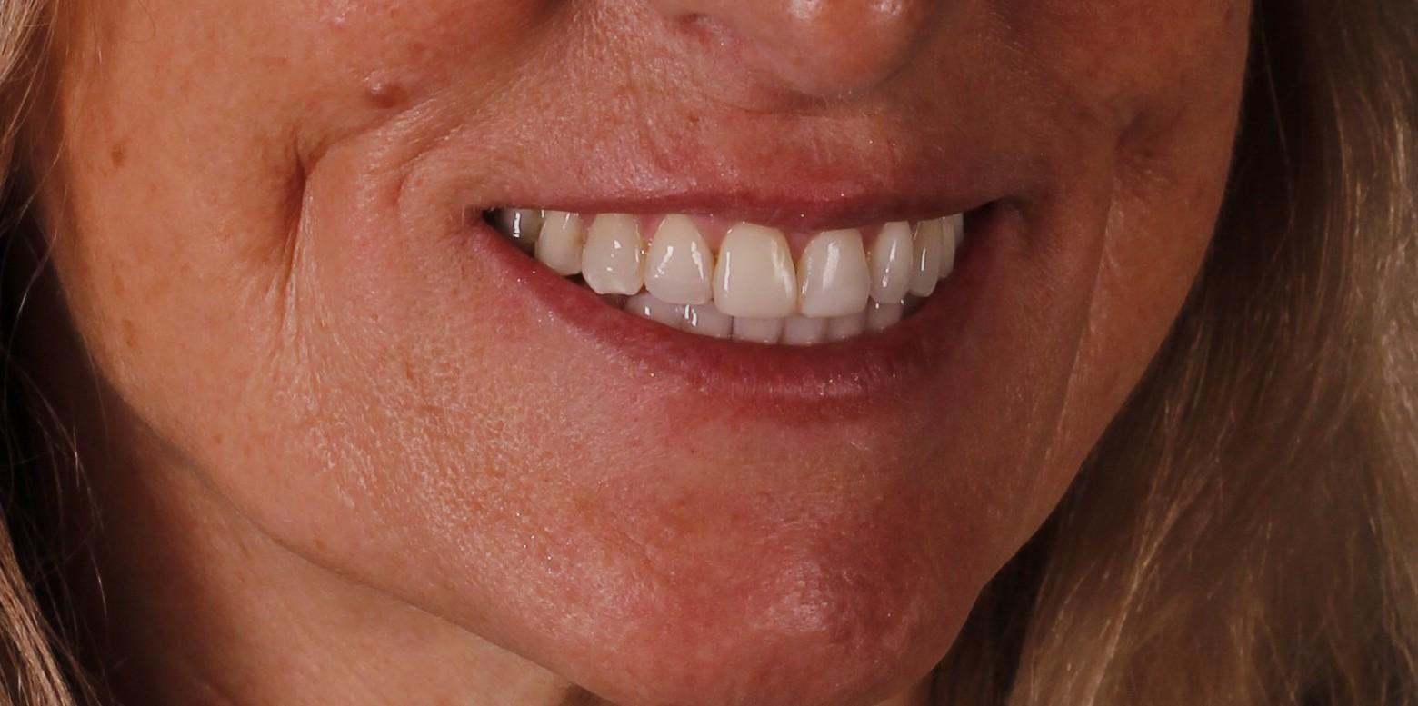 Tratamiento de estética dental en Clínica Peydro