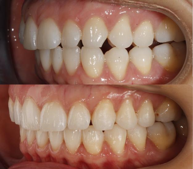 Fotografía lateral del antes y después de la paciente